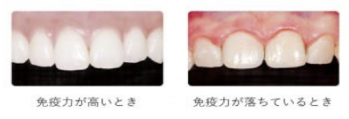 歯周病と免疫力