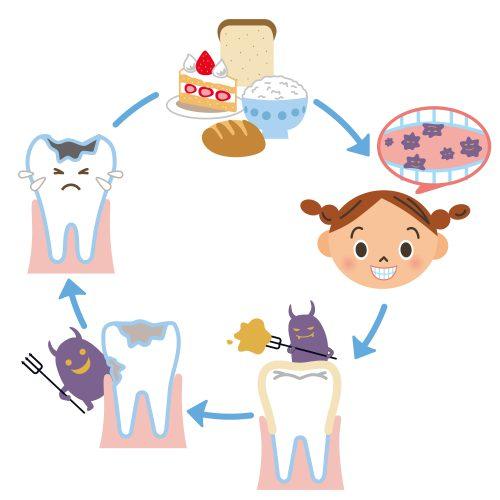 虫歯のメカニズム