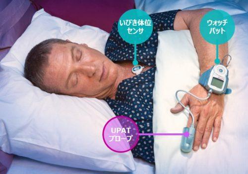 睡眠時無呼吸の治療法